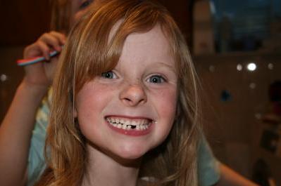 Zahnersatz bei Kindern